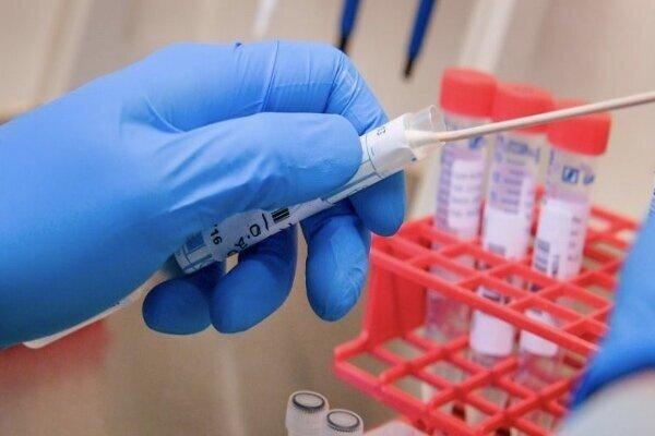 سازمان غذا و داروی آمریکا تست خانگی کرونا را تایید کرد